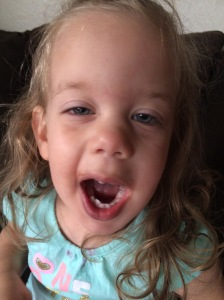 After her Frenectomy and popsicle treat.